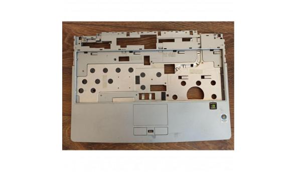 """Середня частина корпуса для ноутбука Medion MD96630, 14.0"""", 60.4x607.002, б/в. Кріплення цілі, є подряпини"""